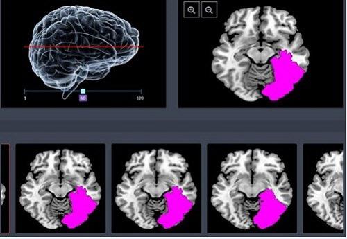 미지의 영역 '뇌'… 해결사로 뜬 인공지능